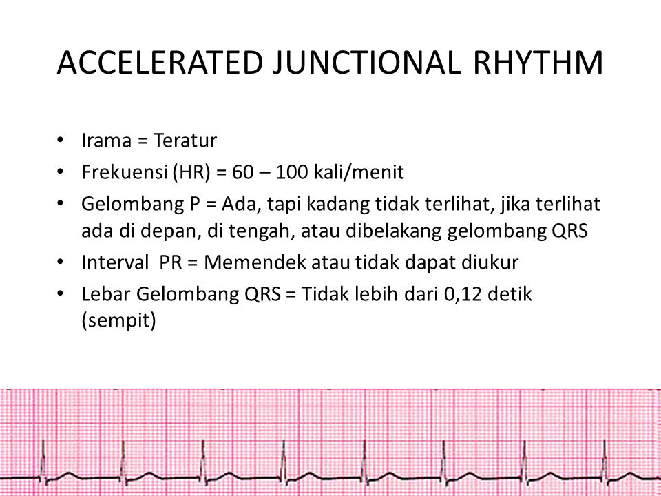 ACCELERATED JUNCTIONAL RHYTHM