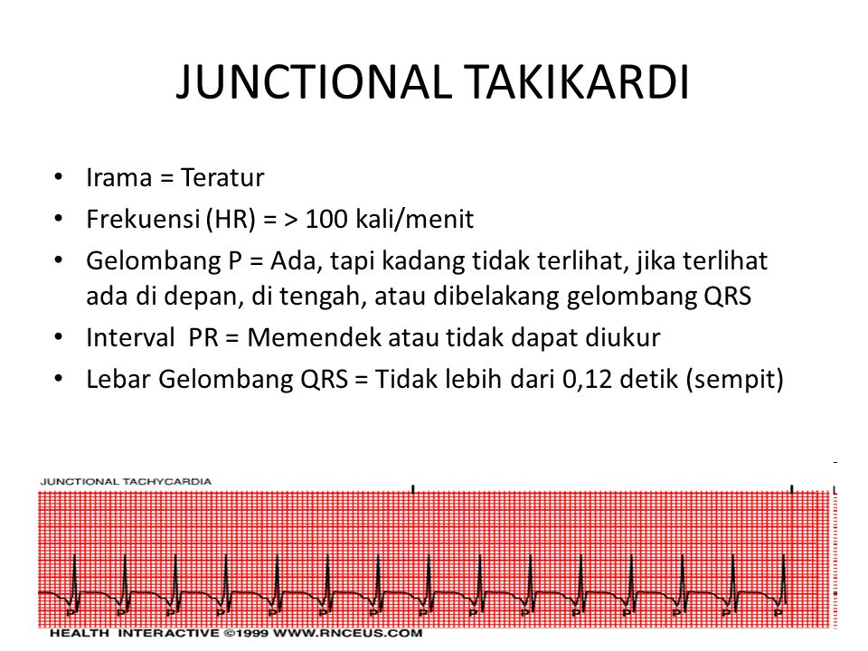 JUNCTIONAL TAKIKARDI Irama = Teratur