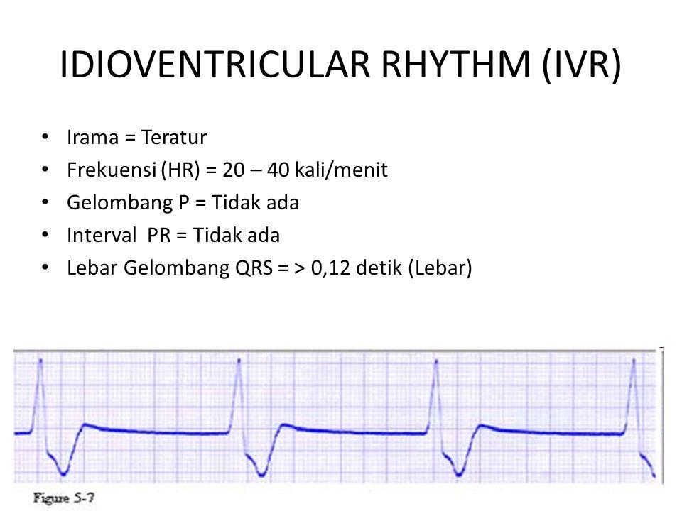 IDIOVENTRICULAR RHYTHM (IVR)