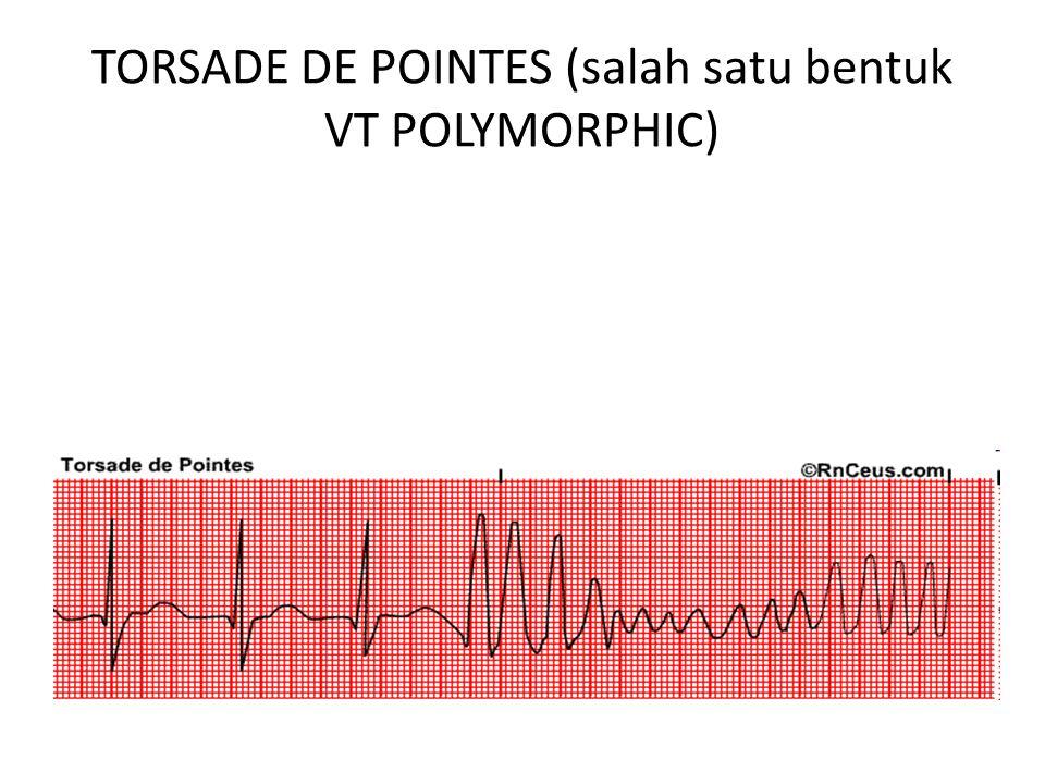 TORSADE DE POINTES (salah satu bentuk VT POLYMORPHIC)