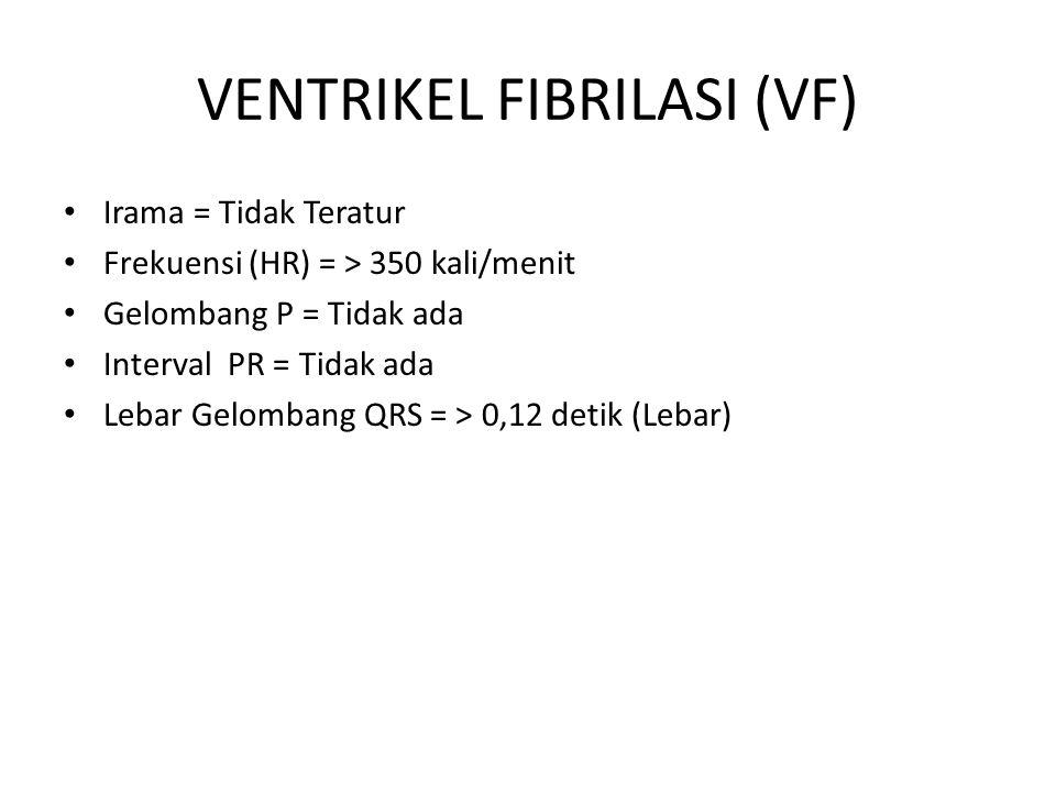 VENTRIKEL FIBRILASI (VF)