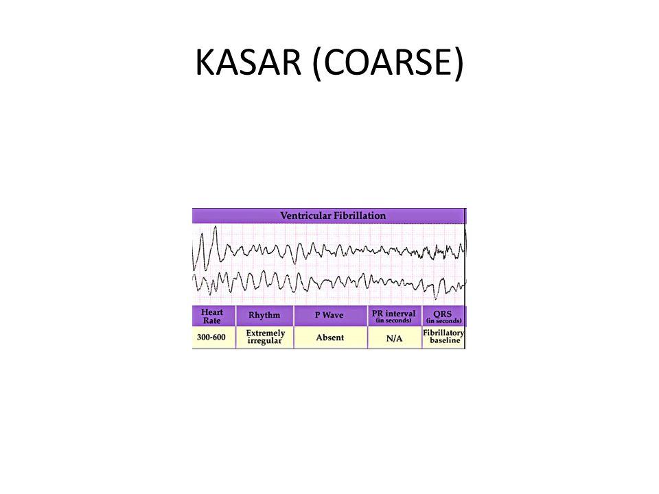 KASAR (COARSE)