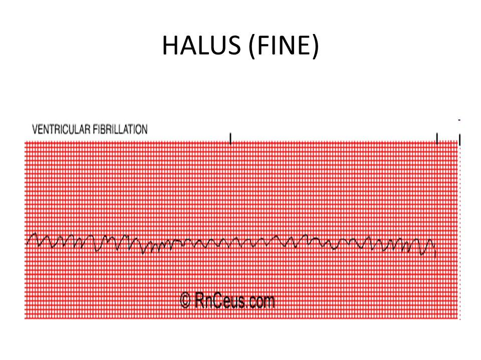HALUS (FINE)