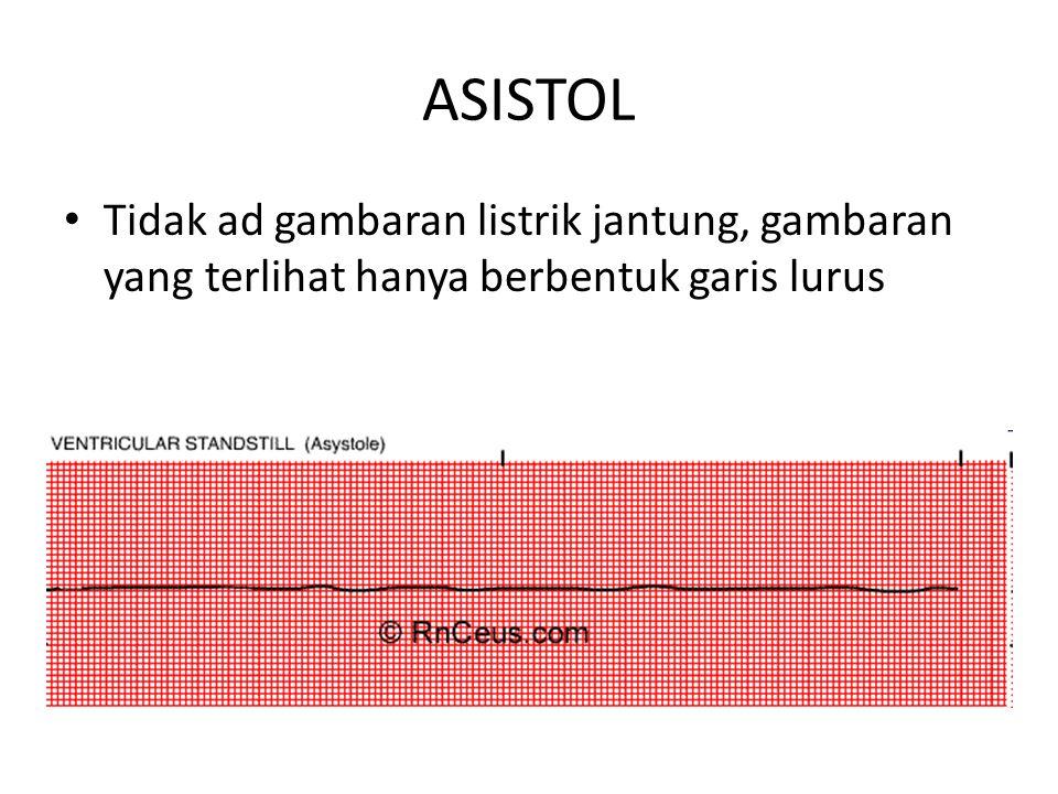 ASISTOL Tidak ad gambaran listrik jantung, gambaran yang terlihat hanya berbentuk garis lurus.