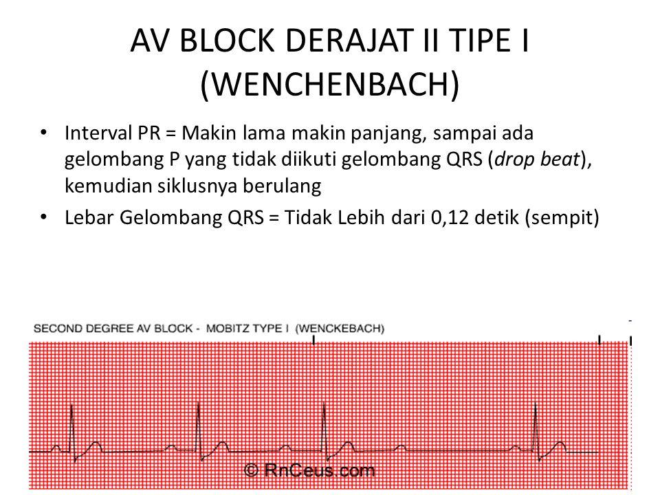 AV BLOCK DERAJAT II TIPE I (WENCHENBACH)