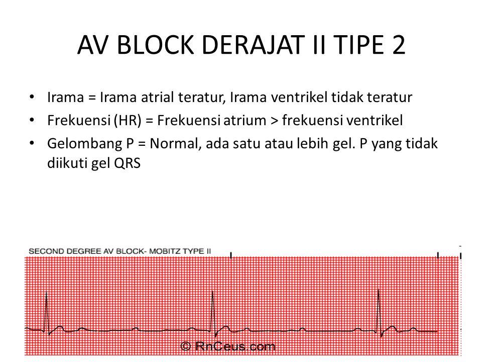 AV BLOCK DERAJAT II TIPE 2