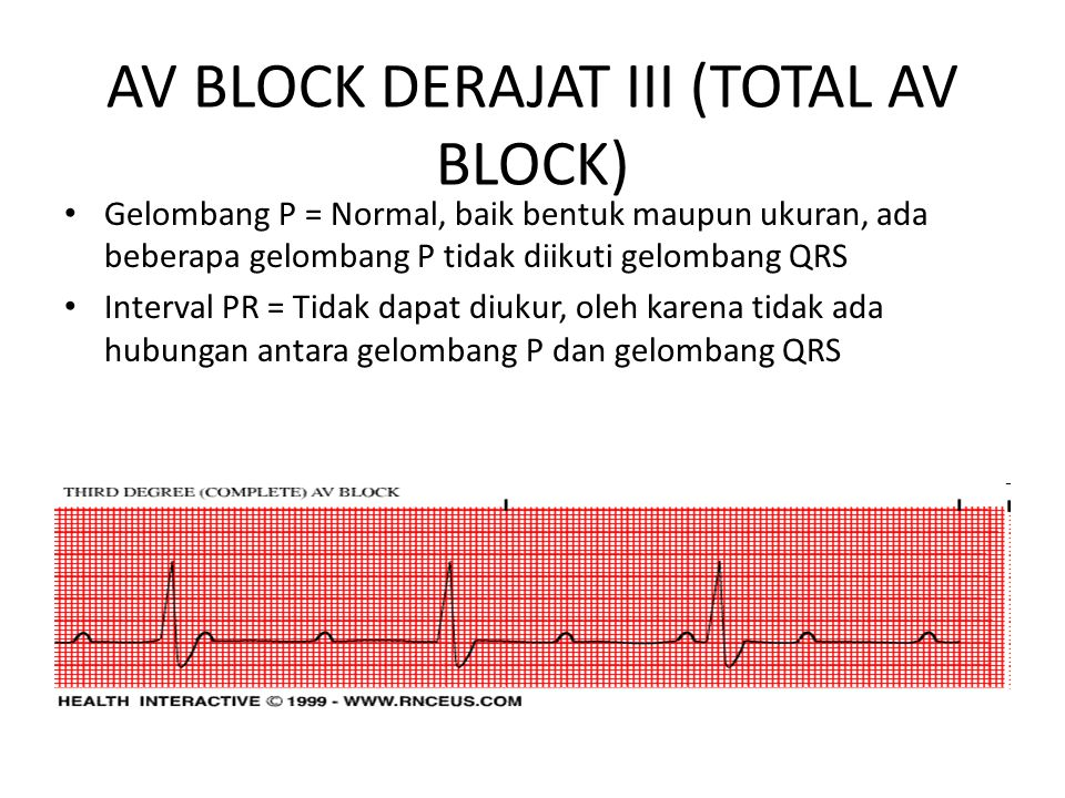 AV BLOCK DERAJAT III (TOTAL AV BLOCK)