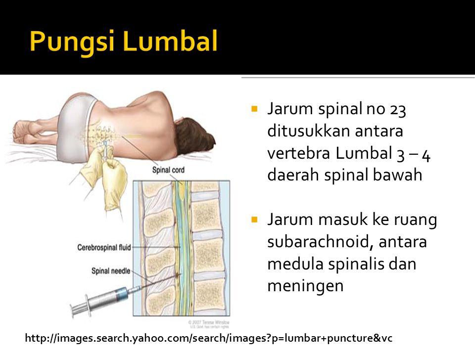 Pungsi Lumbal Jarum spinal no 23 ditusukkan antara vertebra Lumbal 3 – 4 daerah spinal bawah.