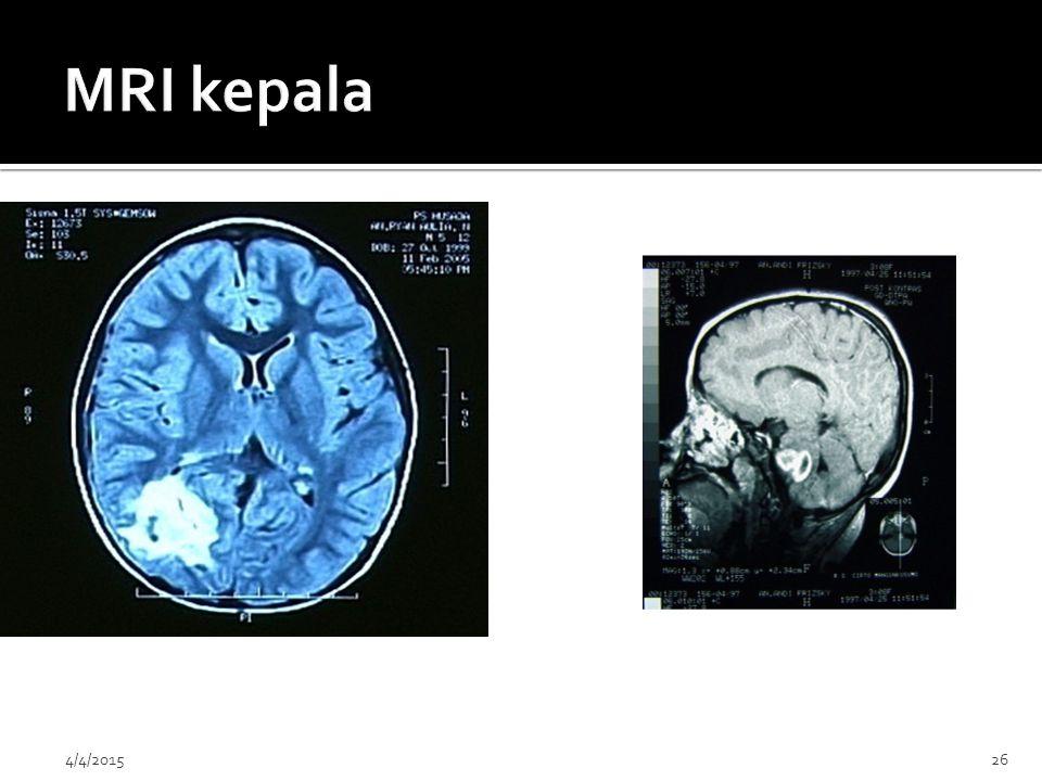MRI kepala 4/9/2017