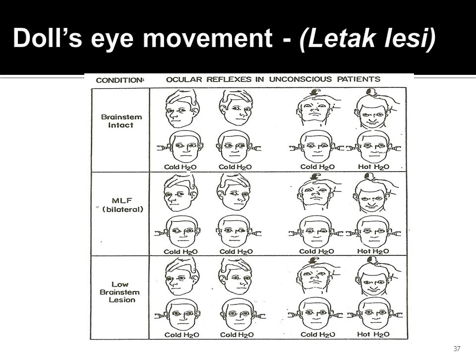 Doll's eye movement - (Letak lesi)