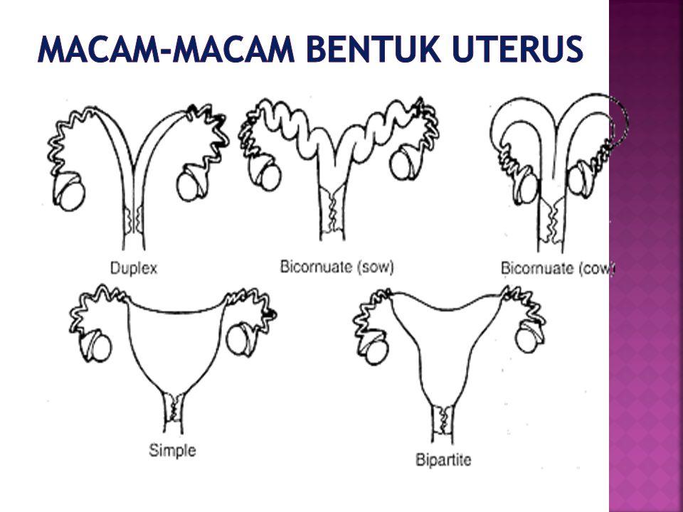 Macam-macam bentuk uterus