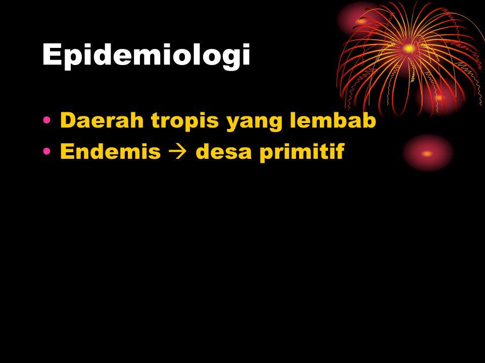 Epidemiologi Daerah tropis yang lembab Endemis  desa primitif