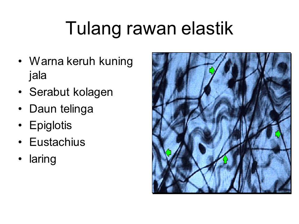 Tulang rawan elastik Warna keruh kuning jala Serabut kolagen