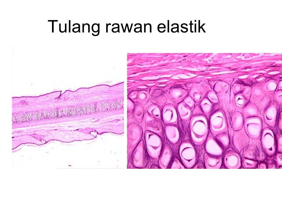 Tulang rawan elastik