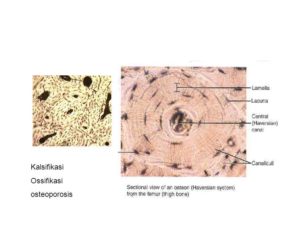 Kalsifikasi Ossifikasi osteoporosis