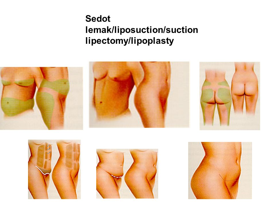 Sedot lemak/liposuction/suction lipectomy/lipoplasty