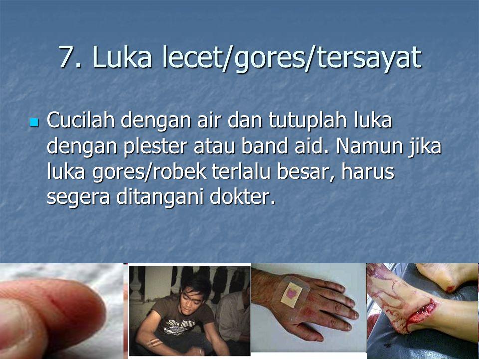 7. Luka lecet/gores/tersayat