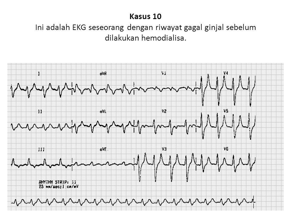 Kasus 10 Ini adalah EKG seseorang dengan riwayat gagal ginjal sebelum dilakukan hemodialisa.
