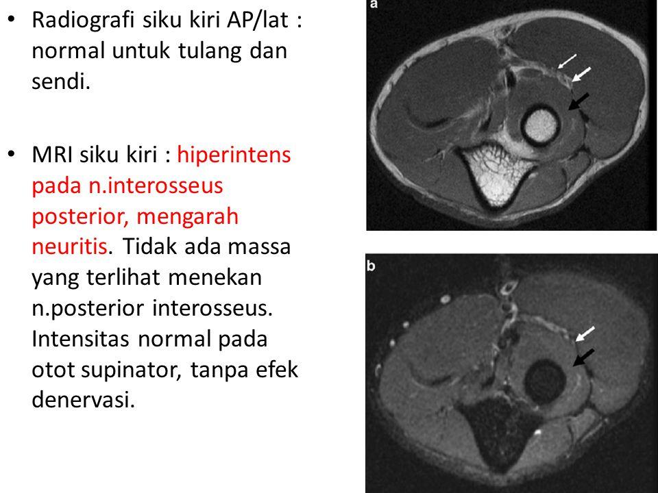 Radiografi siku kiri AP/lat : normal untuk tulang dan sendi.