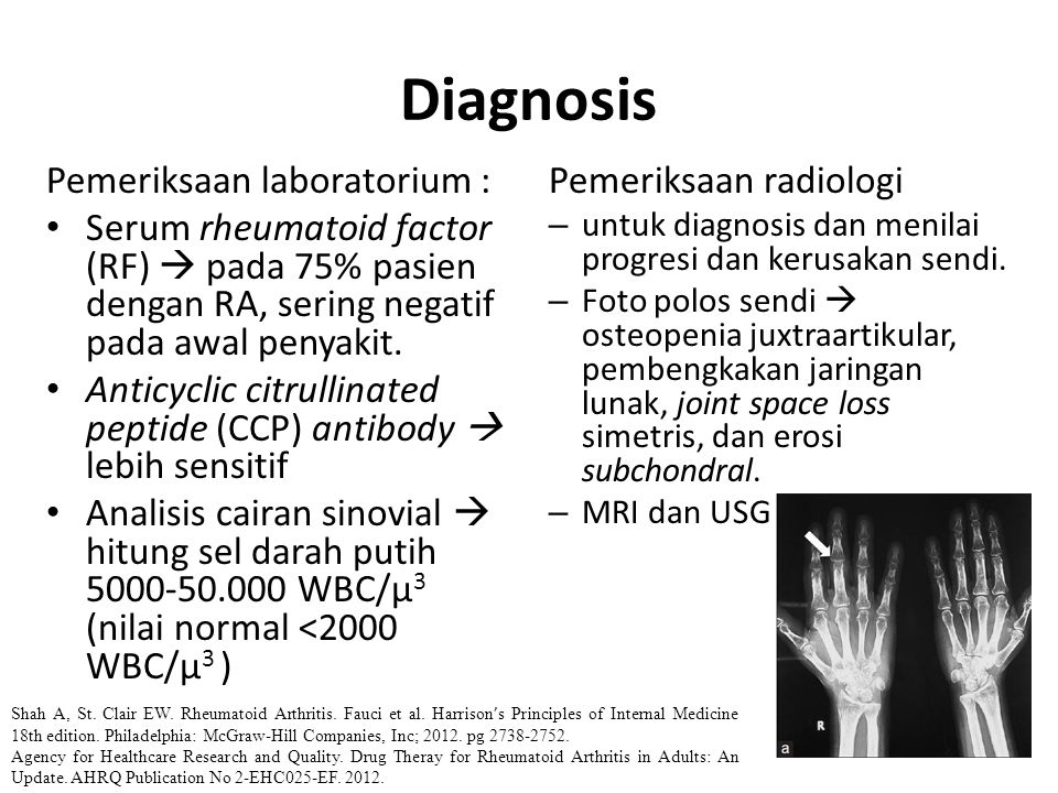Diagnosis Pemeriksaan laboratorium :