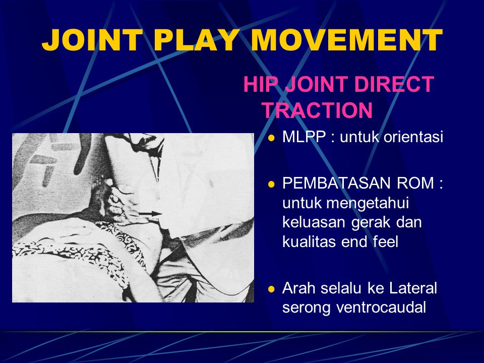 JOINT PLAY MOVEMENT HIP JOINT DIRECT TRACTION MLPP : untuk orientasi