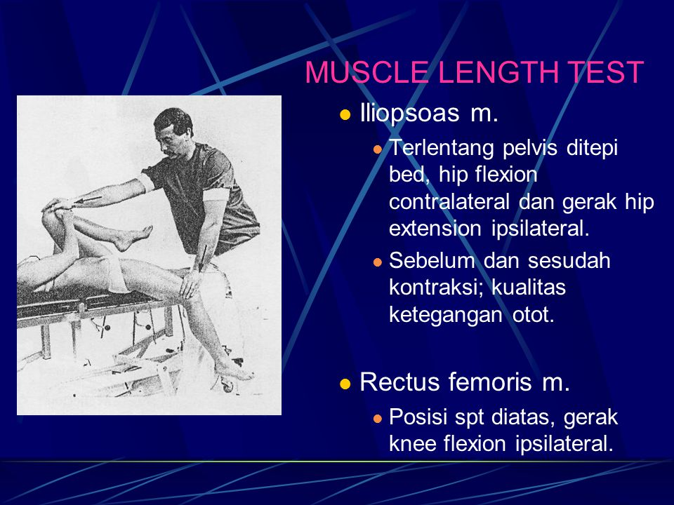 MUSCLE LENGTH TEST Iliopsoas m. Rectus femoris m.