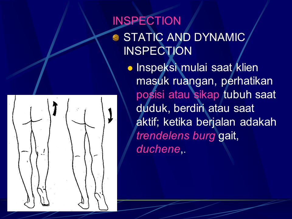 INSPECTION STATIC AND DYNAMIC INSPECTION.