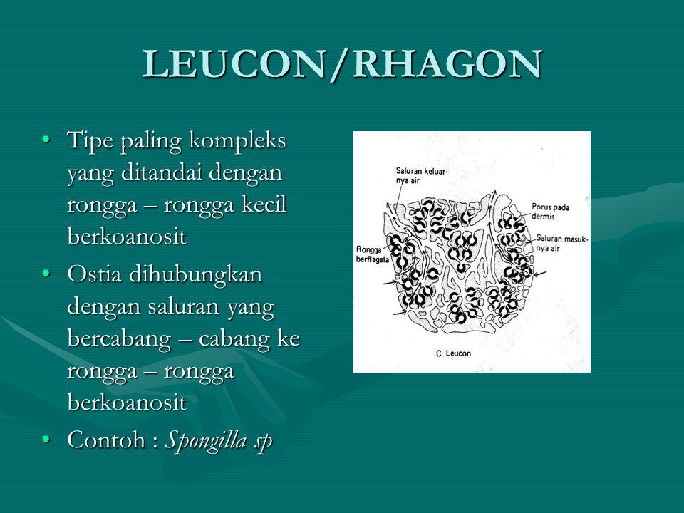 LEUCON/RHAGON Tipe paling kompleks yang ditandai dengan rongga – rongga kecil berkoanosit.