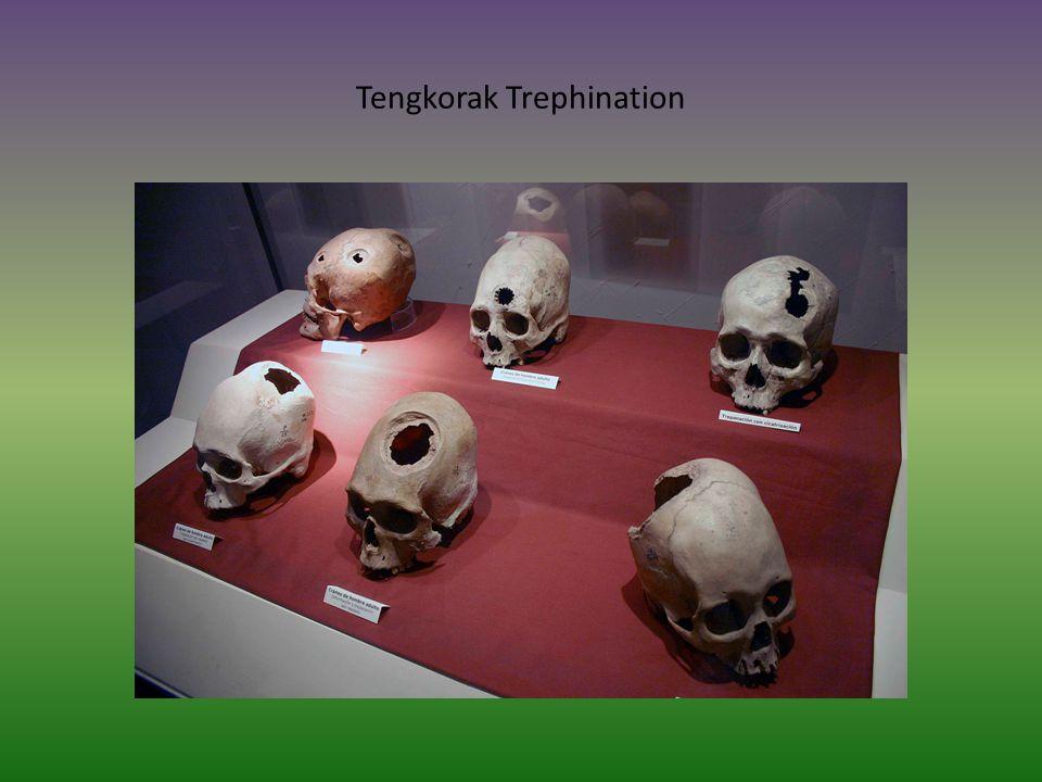 Tengkorak Trephination