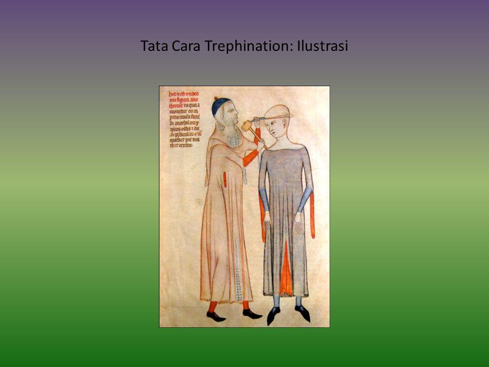 Tata Cara Trephination: Ilustrasi