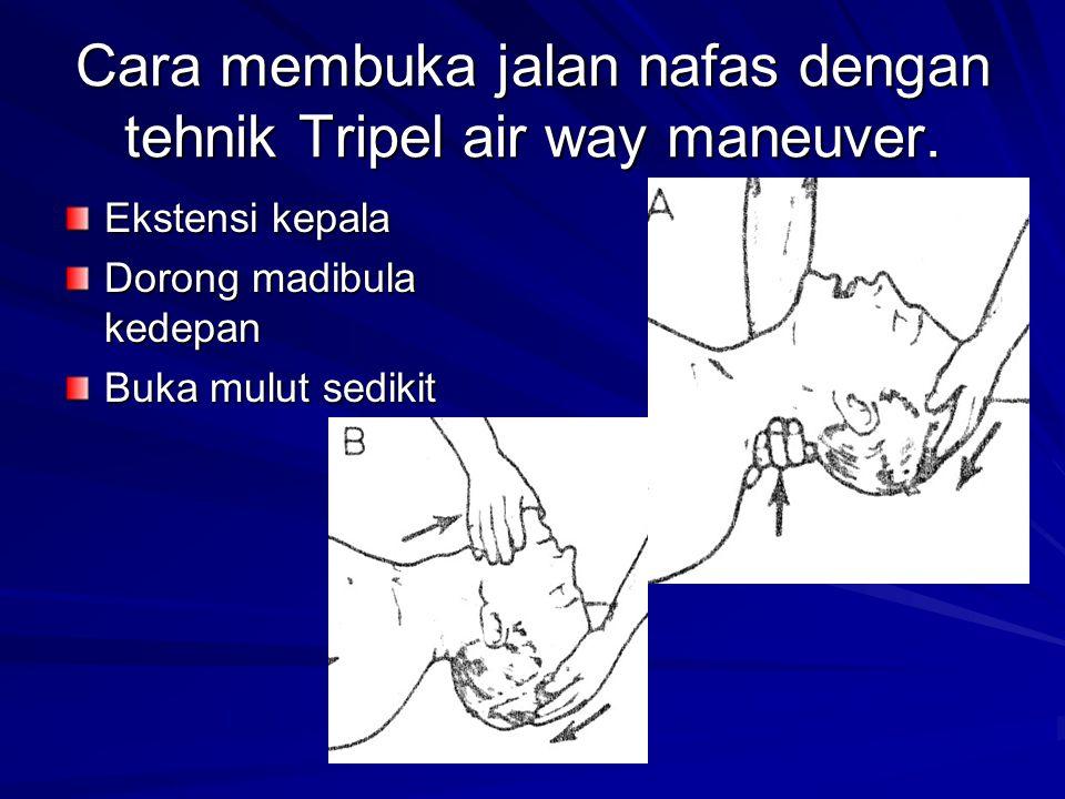 Cara membuka jalan nafas dengan tehnik Tripel air way maneuver.