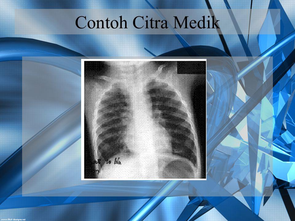 Contoh Citra Medik