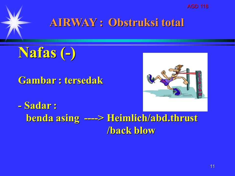 Nafas (-) AIRWAY : Obstruksi total Gambar : tersedak - Sadar :