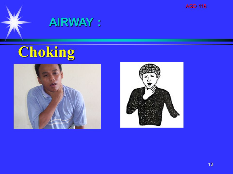 AGD 118 AIRWAY : Choking