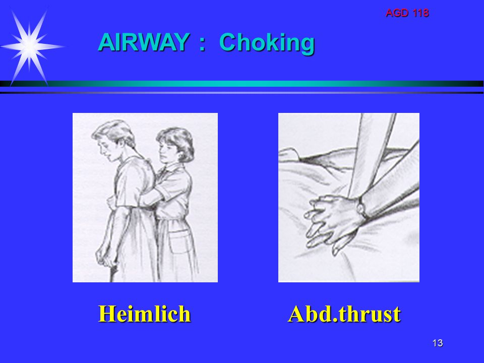 AGD 118 AIRWAY : Choking Heimlich Abd.thrust