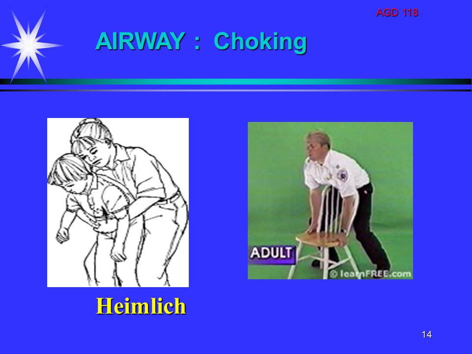 AGD 118 AIRWAY : Choking Heimlich