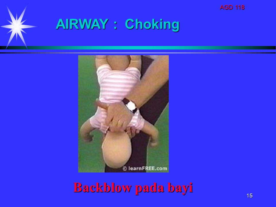 AGD 118 AIRWAY : Choking Backblow pada bayi