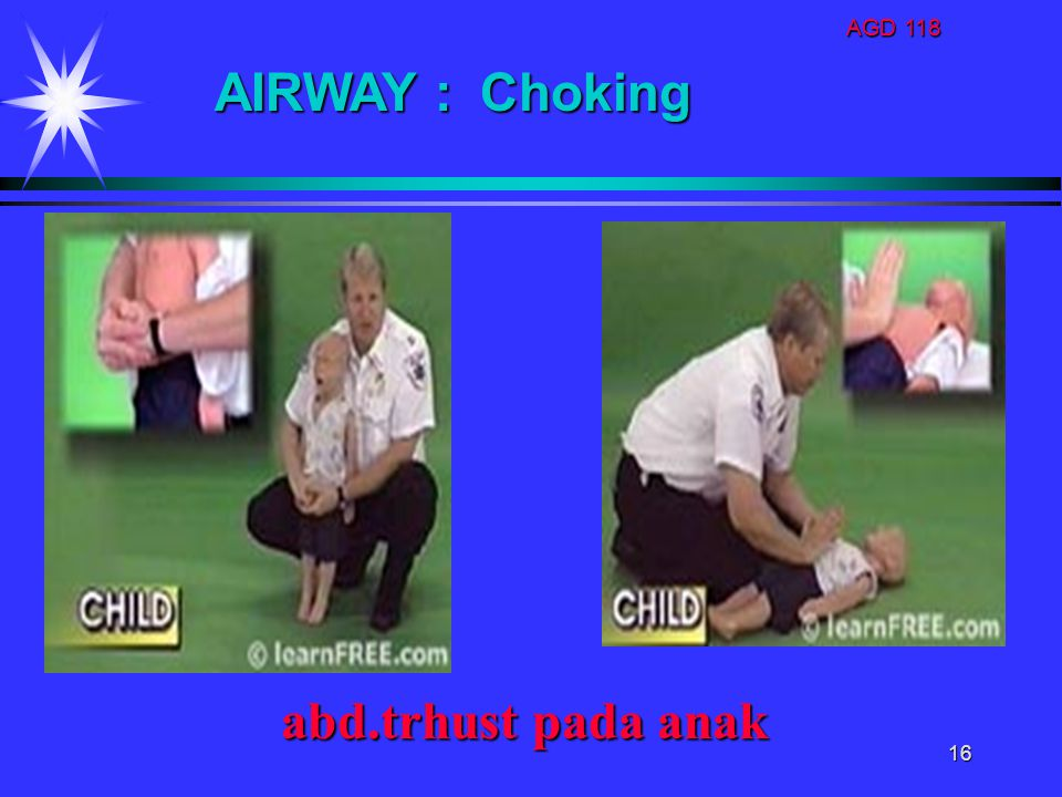AGD 118 AIRWAY : Choking abd.trhust pada anak