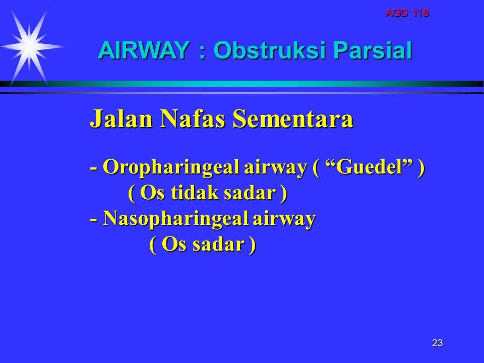 Jalan Nafas Sementara AIRWAY : Obstruksi Parsial