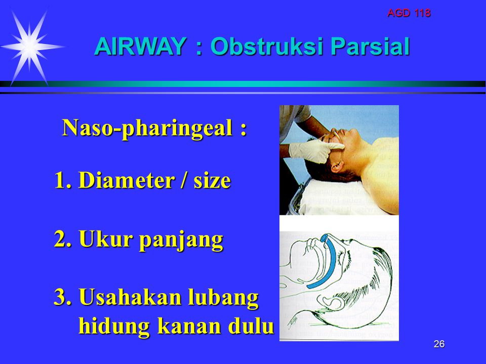 AIRWAY : Obstruksi Parsial