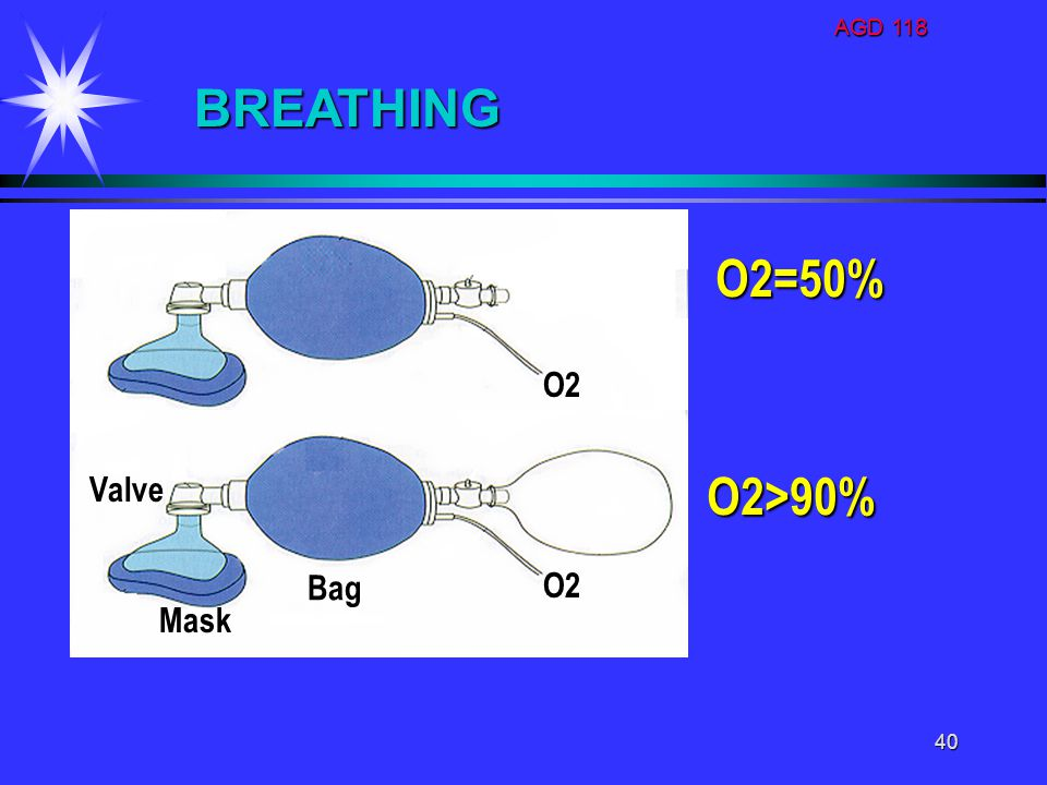 AGD 118 BREATHING O2=50% O2 Valve O2>90% Bag O2 Mask