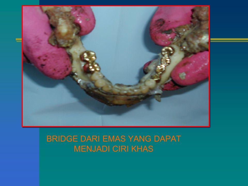 BRIDGE DARI EMAS YANG DAPAT