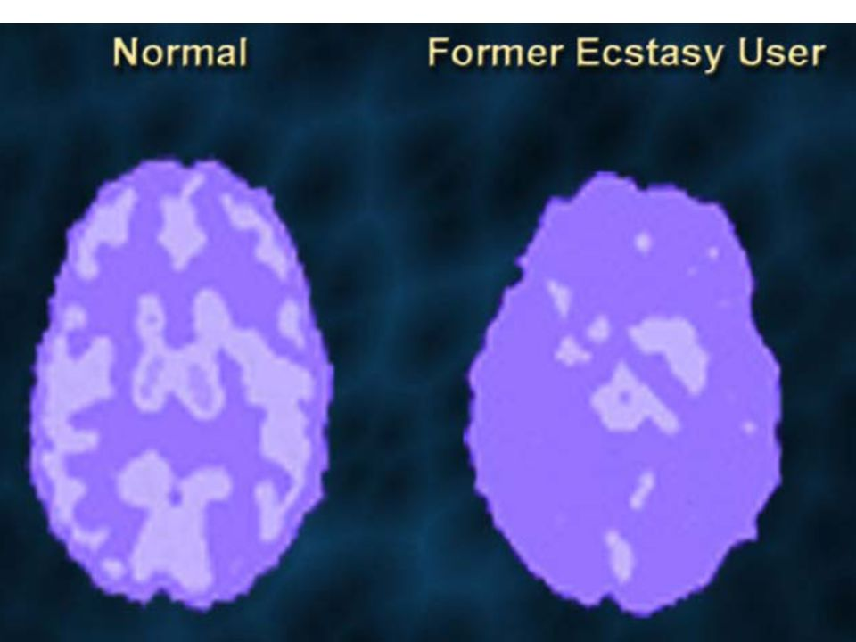 Slide 1: Introduction--A Former Ecstasy User