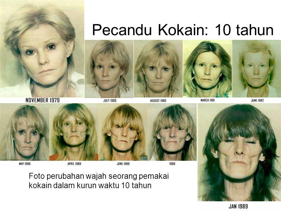 Pecandu Kokain: 10 tahun Foto perubahan wajah seorang pemakai kokain dalam kurun waktu 10 tahun