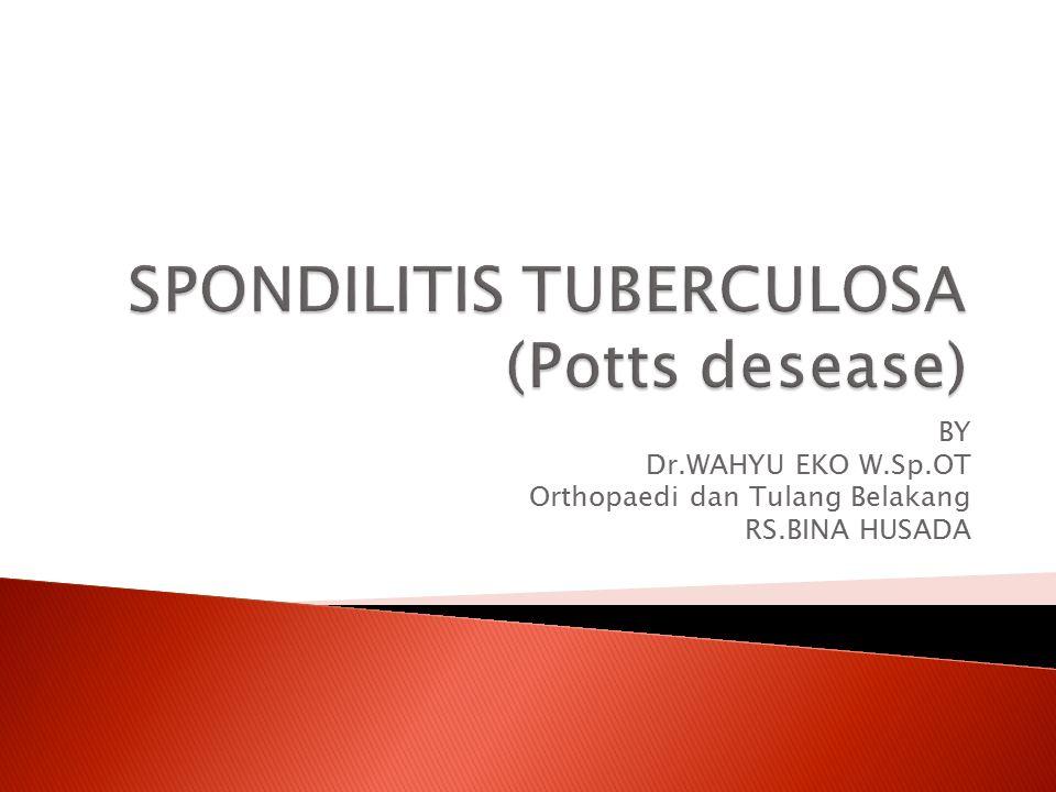SPONDILITIS TUBERCULOSA (Potts desease)