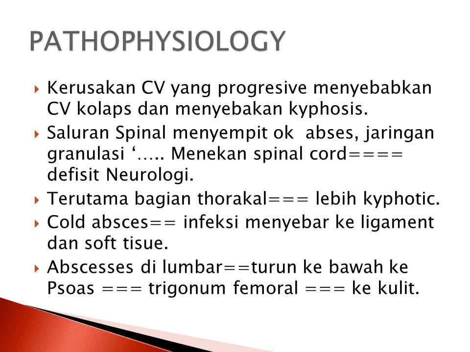 PATHOPHYSIOLOGY Kerusakan CV yang progresive menyebabkan CV kolaps dan menyebakan kyphosis.