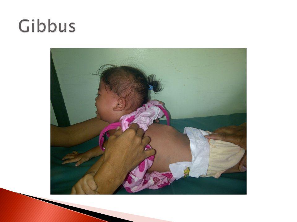 Gibbus