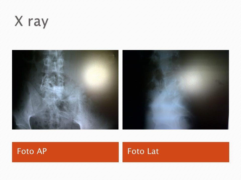 X ray Foto AP Foto Lat