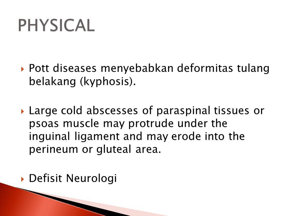 PHYSICAL Pott diseases menyebabkan deformitas tulang belakang (kyphosis).