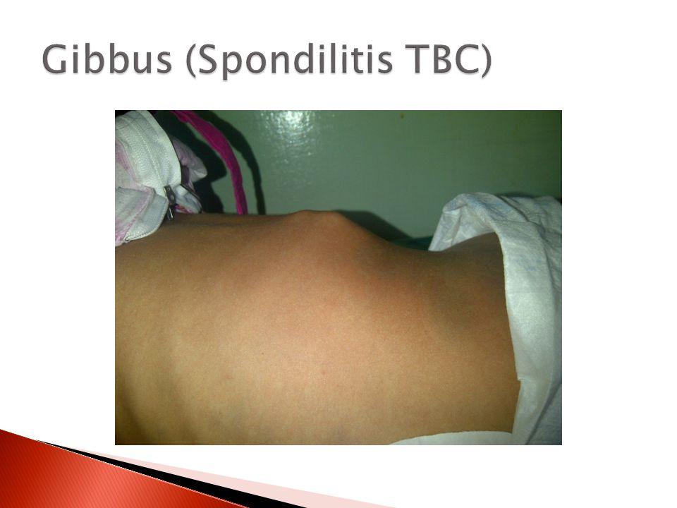 Gibbus (Spondilitis TBC)